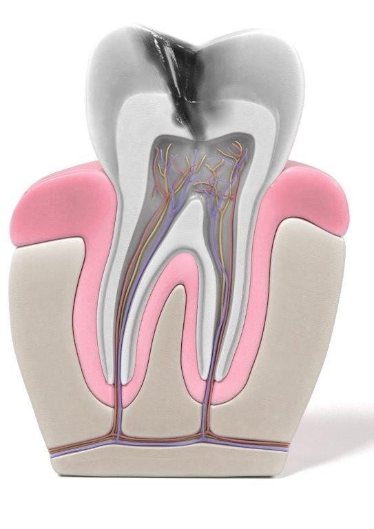 Root Canals Plano