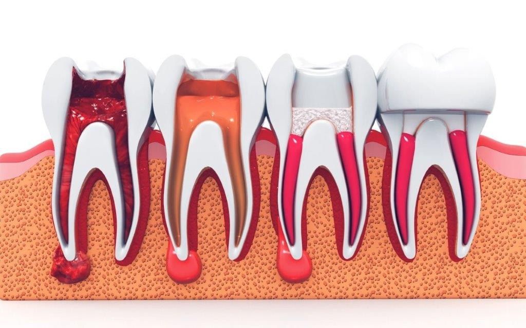 Root Canals Irving
